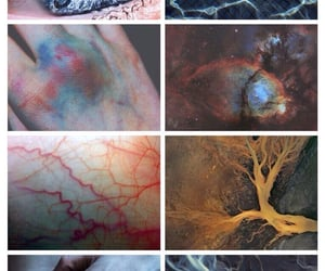 bruise, blue, and eyes image
