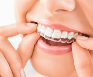 braces, invisible, and Dental image