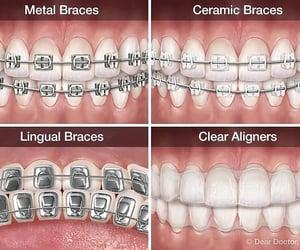 braces and Dental image