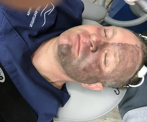 acne, hannover, and laser image