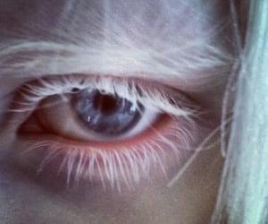 albino, blue, and blueeyes image