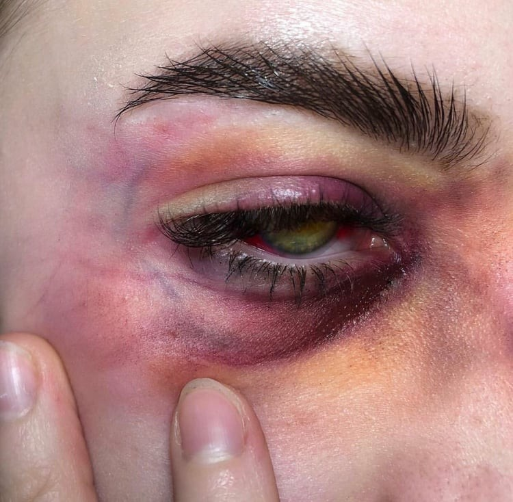 Immagine di bruise and eyes