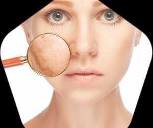 acne scar treatment, acne scar removal, and best acne scar treatment image