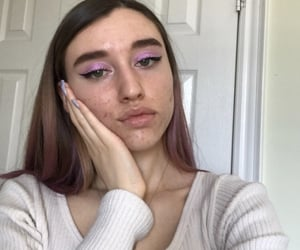 acne, aesthetic, and me image