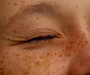 beauty, skin, and closeup image