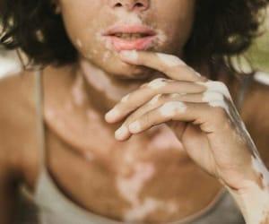 aesthetic, vitiligo, and hand image