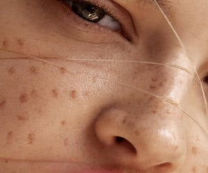 theme and freckles image