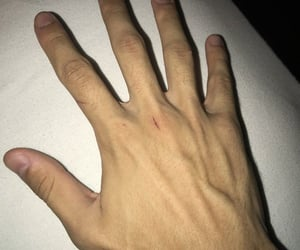 hands and veins image