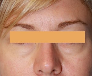 Beverly Hills, plastic surgery, and plastic surgeon image