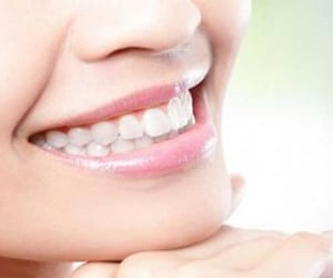 teeth cleaning, teeth whitening, and teeth care image
