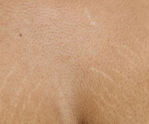 beauty, skin, and stretch marks image