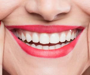 dental clinic, teeth whitening, and teeth whitening treatment image