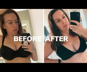 plastic surgery, chelseapearl, and reduction image