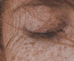 skin moles image