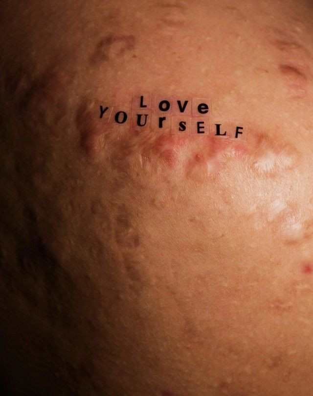 acne, PIMPLES, and selflove image