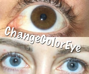 before and after, blue eyes, and clinic image