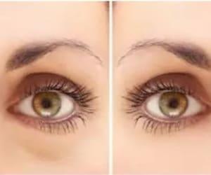 lower eyelid, under eye dark circle, and eyelid surgery image