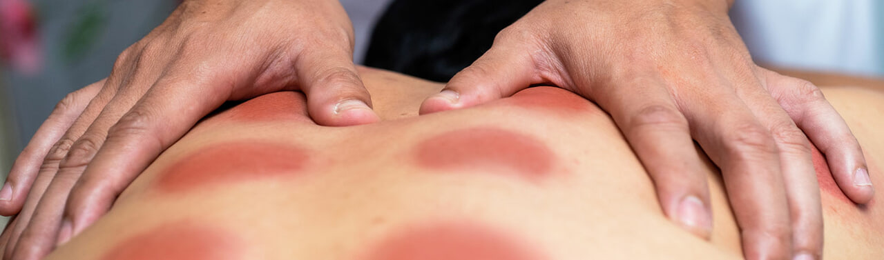 article, massage, and cupping image