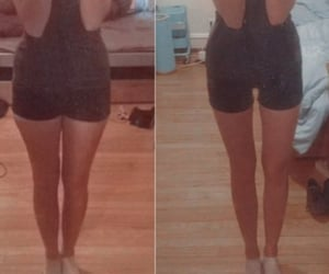 anorexia image