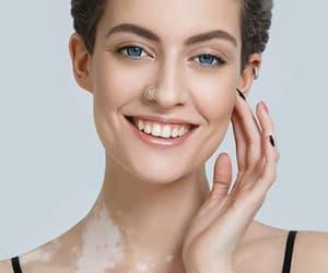 skin care, vitiligo, and white patches image