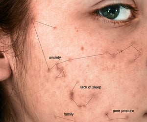 acne, anxiety, and constellations image