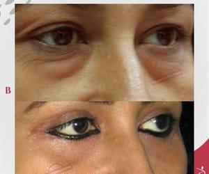 eyelid surgery in mumbai image