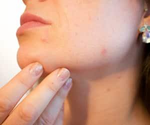 beauty, skin treatment, and fashion image