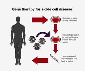 sickle cell anemia and sickle cell image