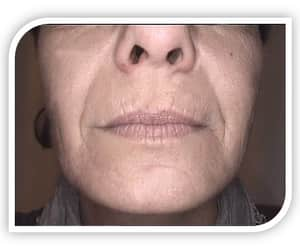 health, skin care, and skin treatment image