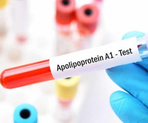 apolipoprotein a-1 test and apolipoprotein image