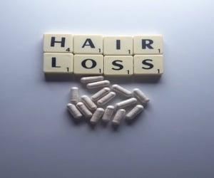 hair, hair supplement, and HAIR LOSS image