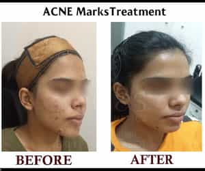 laser comb, anti acne gel, and plasma therapy image