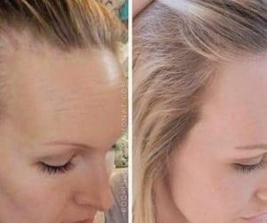 hair and hair growth image