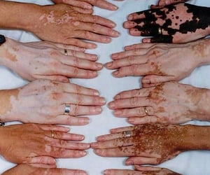 manos, inspiracion, and vitiligo image
