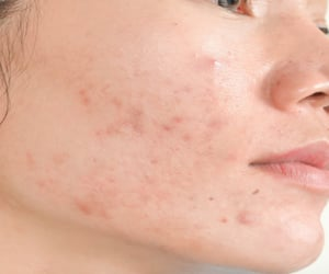skin care tips, skin specialist, and acne scars treatment image