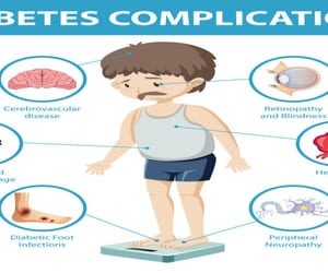 high sugar level symptoms and type 2 diabetes test image
