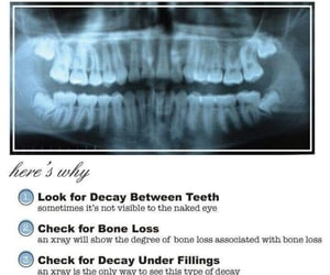 college, tooth, and Dent image