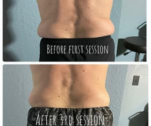 before and after, bodyrx louisville, and body sculpting image