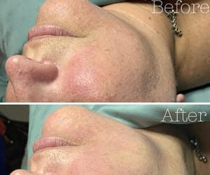 before and after, bodyrx louisville, and hydrafacial image