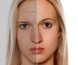 photo retouching, photo masking, and color correction image