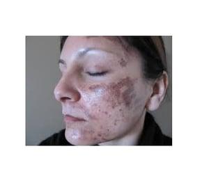 facials, hair removal, and skin rejuvenation image