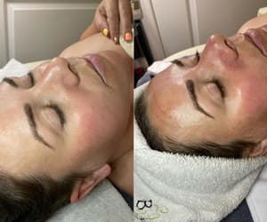before and after, bodyrx, and bodyrx louisville image