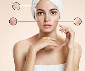 skin treatment and skin clinic image