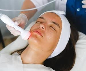 skin treatment and microneedling skin image