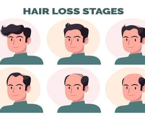 male pattern baldness and hair growth for men image