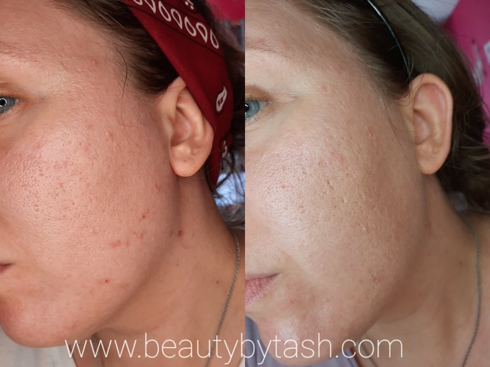 acne, skin care, and beauty image