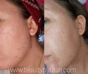skincare, article, and oily skin image