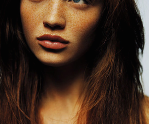 ginger and freckles image
