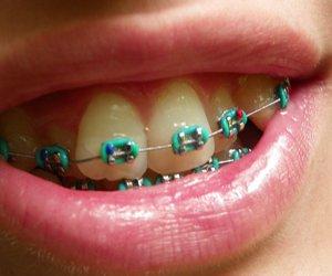 bracket, bras, and dentist image