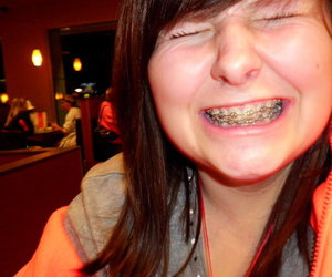 braces, girl, and smile image